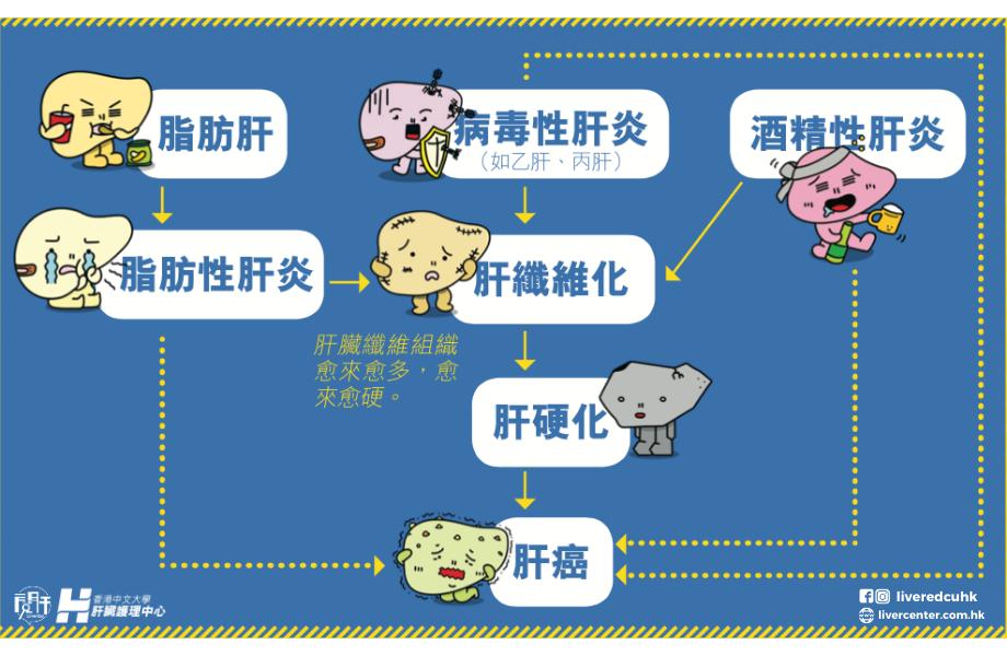 肝炎脂肪肝引致肝硬化肝癌